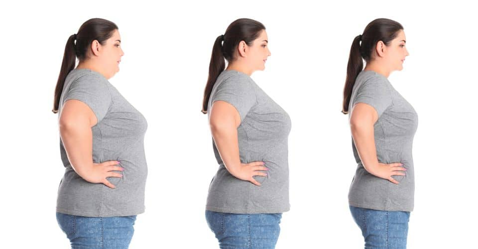 Collage,with,photos,of,overweight,woman,before,and,after,weight